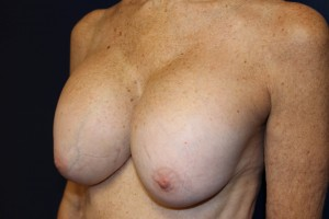 E) Before breast implant removal