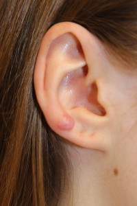 A. Keloid of the right ear