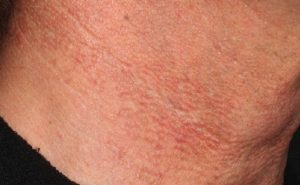 Sun damaged neck after excel V laser treatments