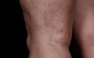 Spider veins of leg before treatment