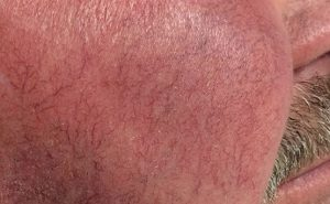 Facial redness and telangiectasia before treatment