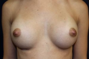 B. After breast augmentation and release of inverted nipples