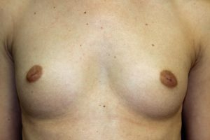 A. 28 year old woman with small breasts and inverted nipples
