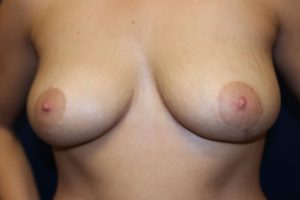 B.) After breast reduction surgery