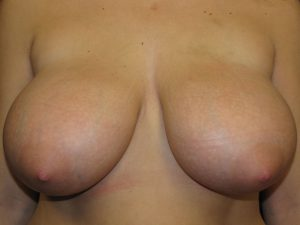 A.) Before breast reduction surgery