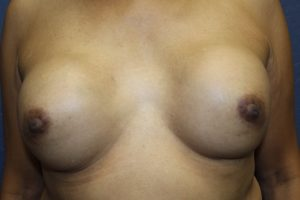 A. Ruptured 40 year old breast implants
