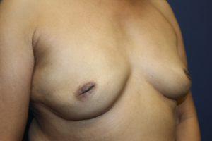 D. 9 months postoperative