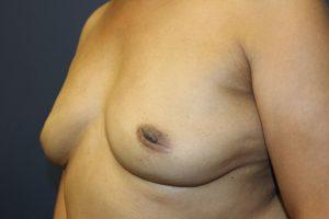 F. 9 months postoperative
