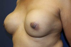 E. Ruptured silicone breast implants