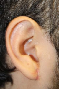D. Gauged right earlobe after repair