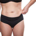 Your Relative Weight (BMI) is an Important Factor When Considering a Tummy Tuck