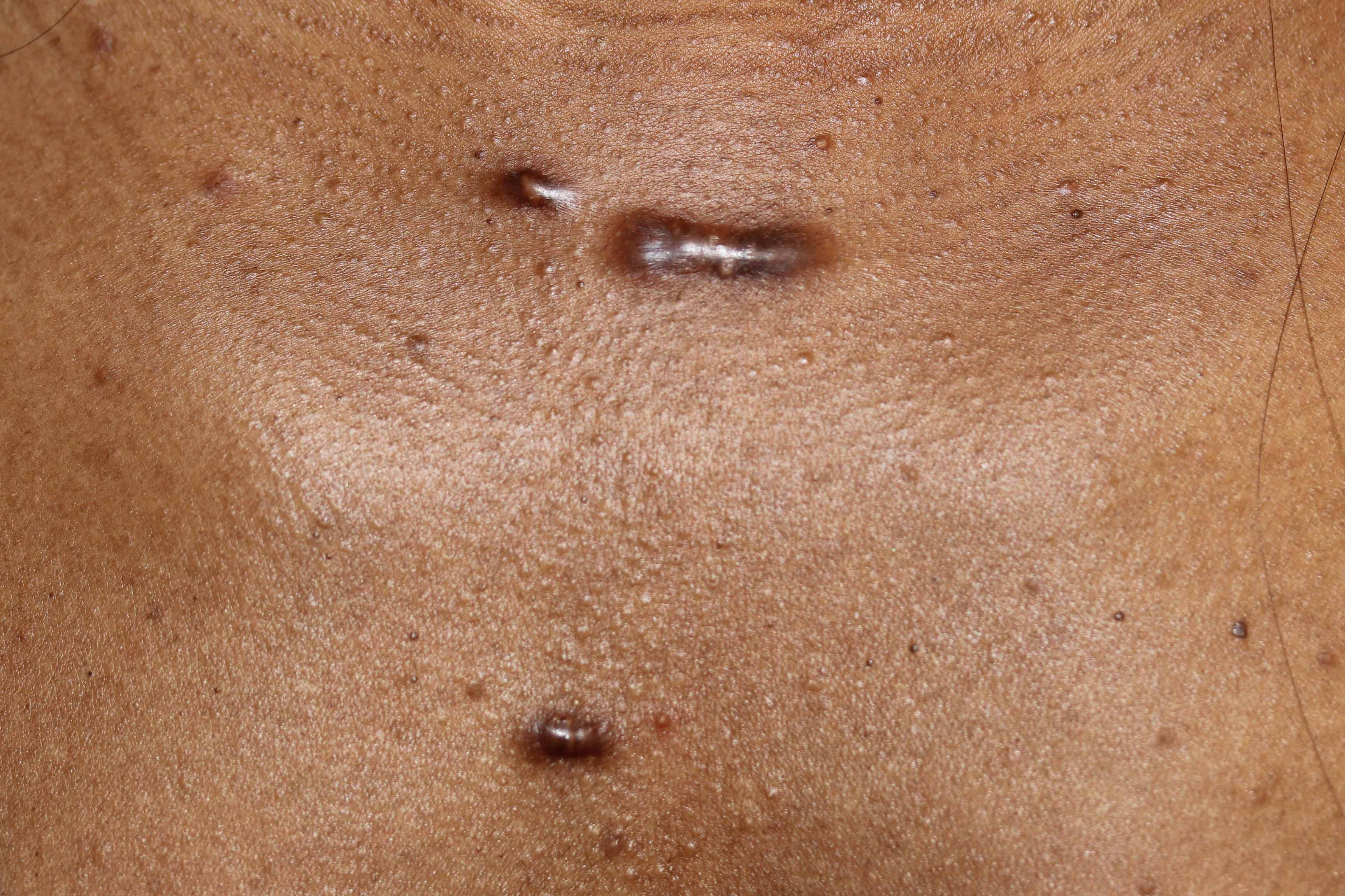 Keloids Of The Chest Can Have Good Outcomes Sometimes