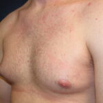 Will My Gynecomastia Resolve with Weight Loss?