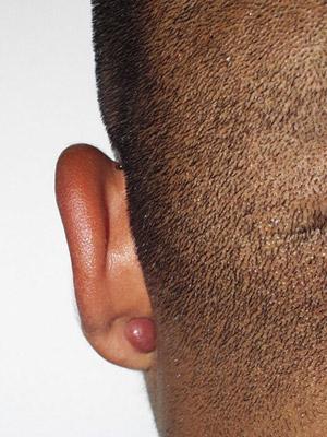 Ear gauges keloid scars