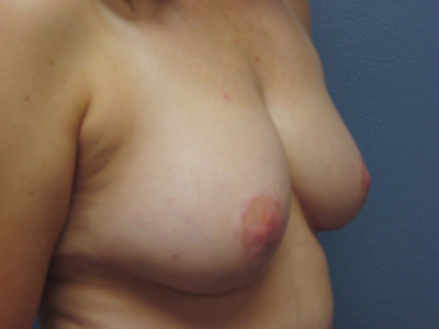 glendale breast reduction